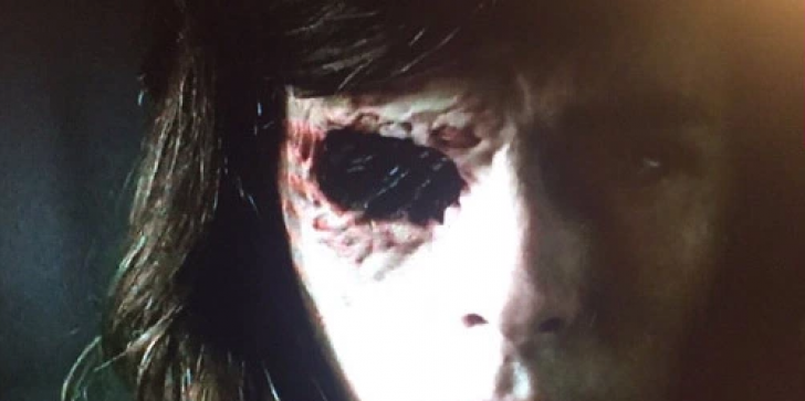 Carl's Eye Socket Finally Revealed On 'The Walking Dead' — Ugly Pic